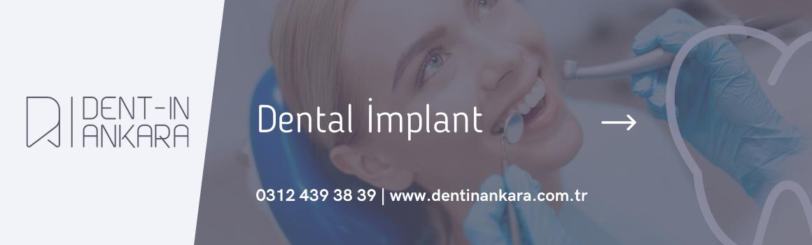 İmplant Tedavisi Ankara - 2021 İmplant Fiyatları Ankara - İmplant Diş Fiyatı - Dentin Ağız ve Diş Sağlığı Merkezi - Ankara İmplant Fiyatı