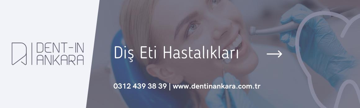 Diş Eti Tedavisi Ankara , 2021 Lazerle Diş Eti Tedavisi Fiyatları Ankara ,  Diş Eti Hastalıkları Uzmanı Ankara , Dentin Ankara