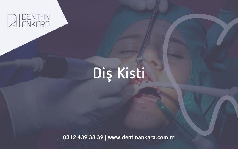 Diş Kisti