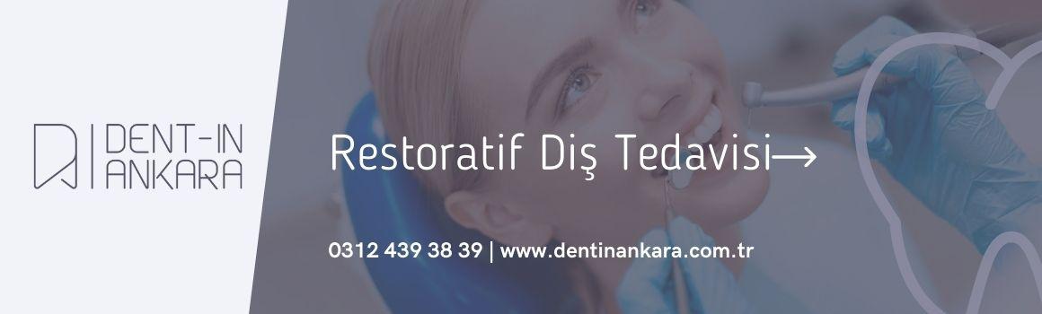 Restoratif Diş Tedavisi Ankara , 2021 Restoratif Diş Tedavisi Nedir , Restoratif Diş Tedavisi Nasıl Yapılır , Dentin Ağız ve Diş Sağlığı Merkezi